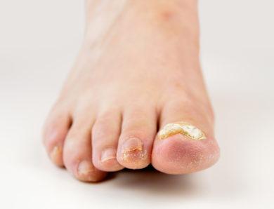 Rimedi naturali contro i funghi delle unghie: ecco quali sono