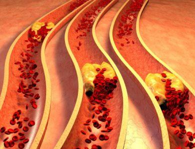 Colesterolo alto: cosa mangiare per risolvere il problema